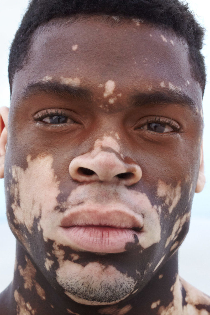 SKIN / Vitiligo by Dirk Rees. - CRXSS